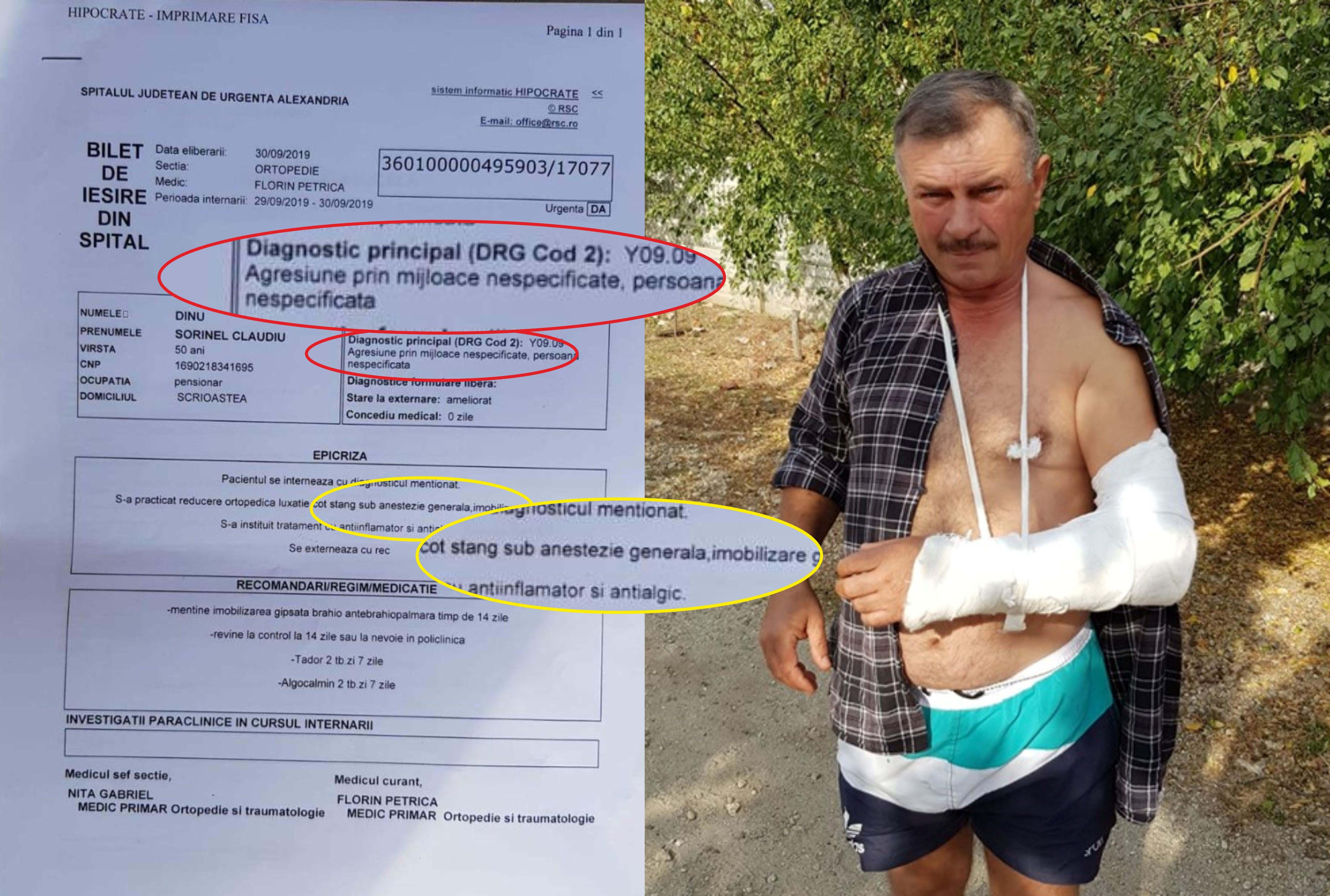 Consilier local din Scrioaştea, agresat şi încătuşat de poliţişti. Dinu Sorinel spune că oamenii legii au acţionat la comandă